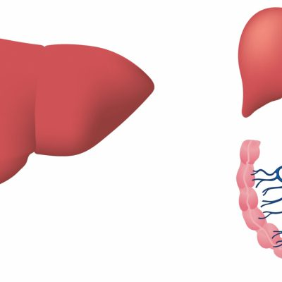 Novel Sensor can non-invasively detect fatty liver disease even before its symptoms appear